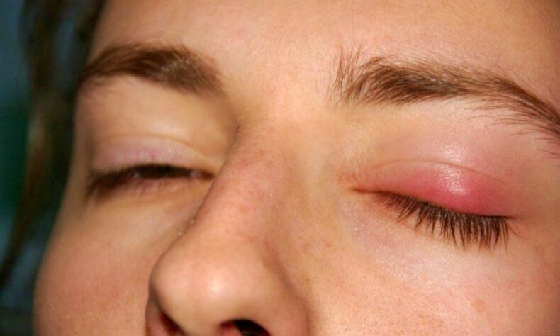 apakah penyakit kalazion berbahaya, gambar penyakit kalazion, obat penyakit kalazion, obat penyakit mata kalazion, penyakit apakah kalazion, penyakit kalazion, penyakit kalazion adalah, penyakit kalazion mata, penyakit kalazion pada mata,